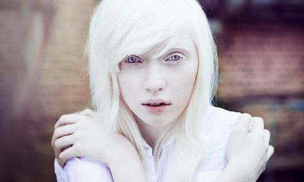 Сегодня Международный день распространения информации об альбинизме